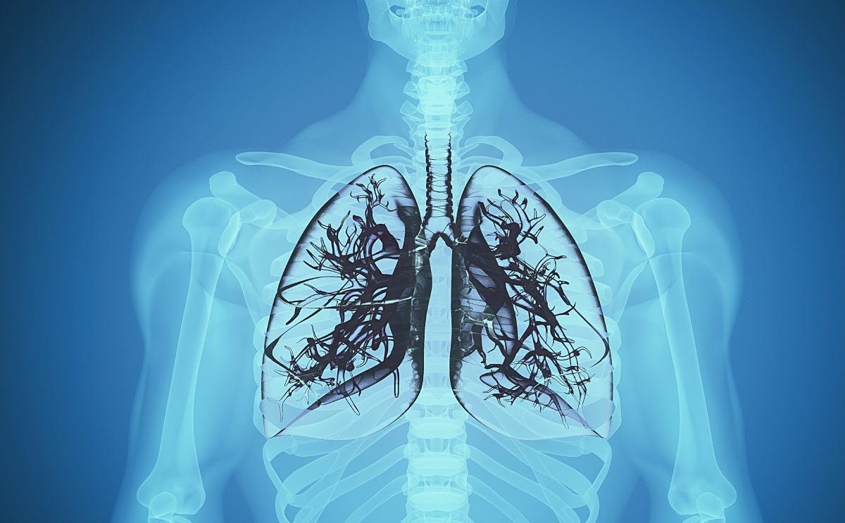 Black Lung diagnosis missed by doctors