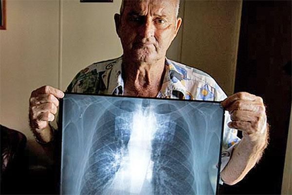 Inquiry hears horrors of black lung disease