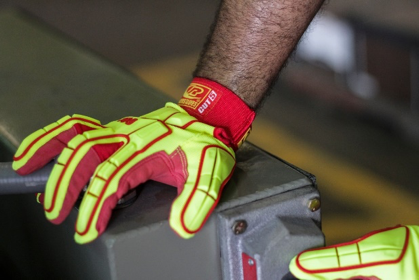 Safety Report Says Nearly Half of Managers Underreport Hand Injuries