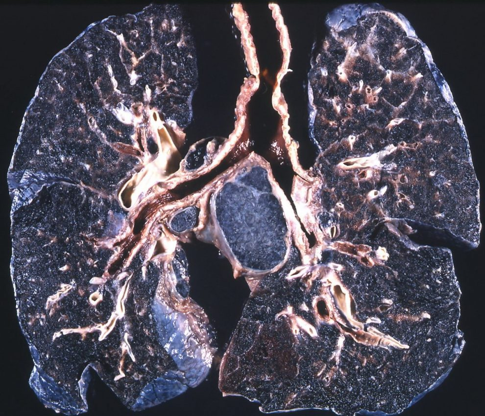 early detection of silicosis