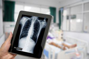 lung screening pre-employment medicals