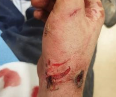 electrical incident resulted in extensive burns to the hands of an electrician 1000V electric shock