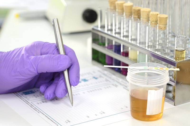 new standard for drug testing has been release