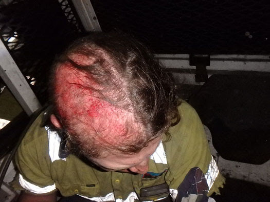 Mine incident scalped from borer after hair got caugut