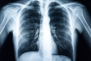 mining lung disease x ray