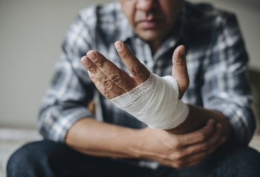 Service mechanic sustained serious hand injuries when struck by radiator fan blades on a generator