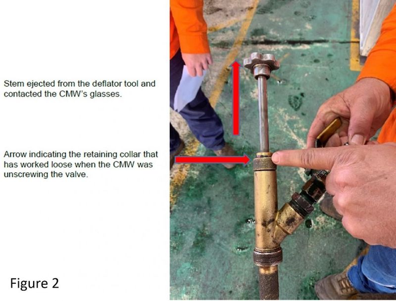 coal mine worker injury